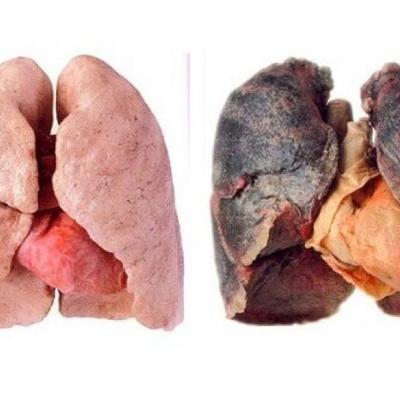 Akciğeri Temizleyen Çok Faydalı Besinler