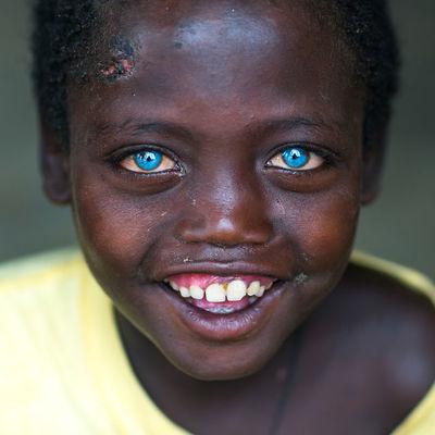 Gözleri Masmavi Yapan Hastalık
